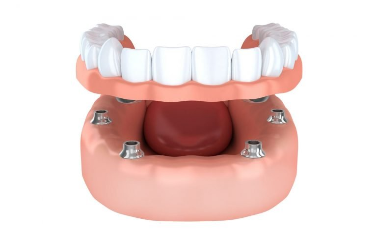 Dental Implants Plymouth
