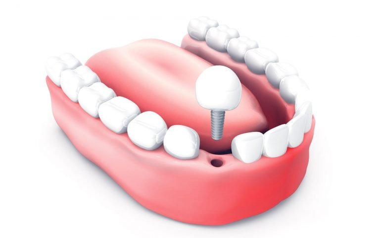 Dental Implant Plymouth